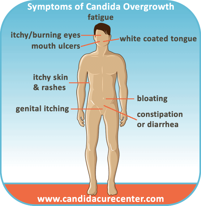 Symptoms Of Candida Albicans Infection Candida Cure Center